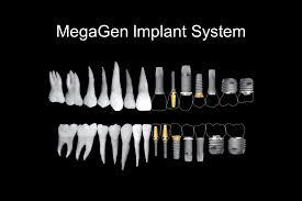 Імплант система - Імпланті