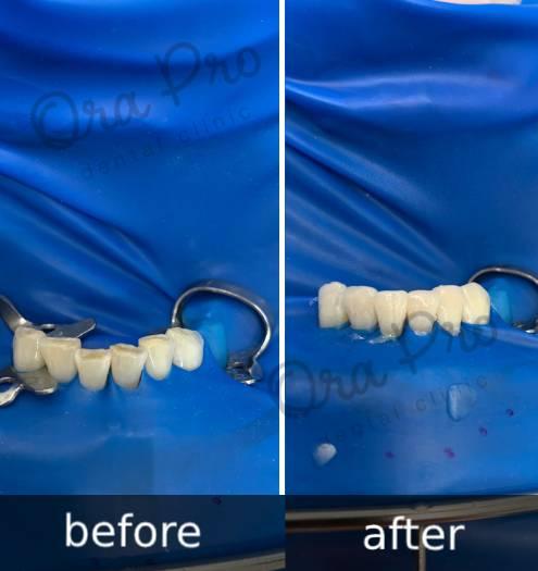 Эстетическая стом-художественная реставрация зубов