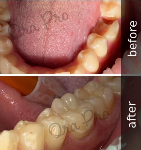 Керамическая накладка до и после протезирования