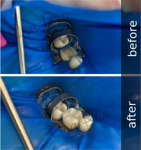 Протезирование зубов-вкладки на зубы